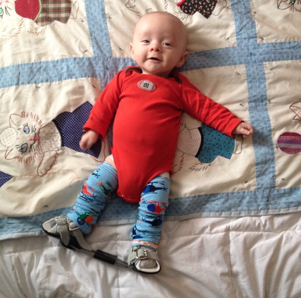 Must Haves For A Clubfoot Little One Kendall Rayburn